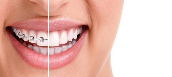 Types-of-Teeth-Whitening