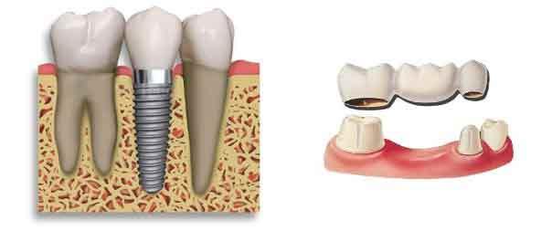Dental Implant in Ahmedabad