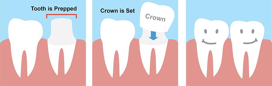 Dental Crown Treatment Procedure