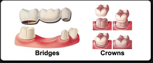 What is Dental Crown