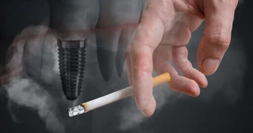 Dental Implant and Smoking