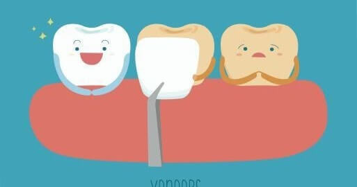 Dental Veneers Good Care