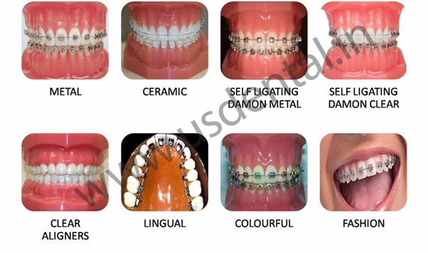 Why hold up when you have varieties to brace yourself us dental different types of braces solutioingenieria Images