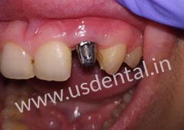 Dental Implant Crown