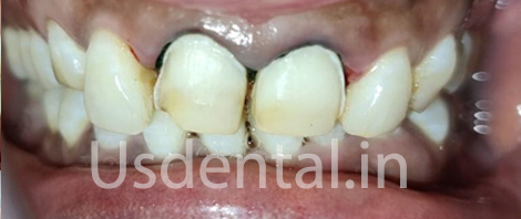 A Permanent Solution Which Lasts Longer Compared to Older Composite Filling - Case of the Month
