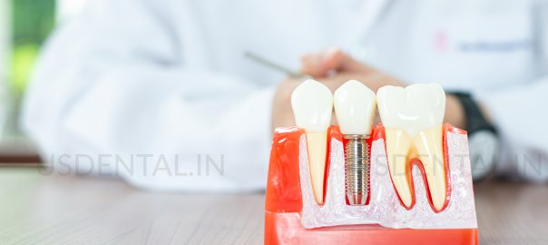 Temporary Eating Habits After Your Dental Implant Treatmen