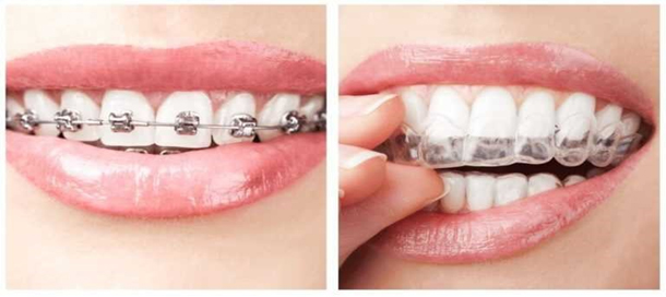 How much Does a Dental Implant Cost for One Tooth?