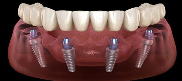 How Much Does All On Four Dental Implant Treatment Cost?