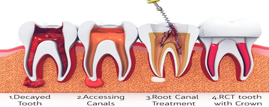 Can Root canal treatment be painless?