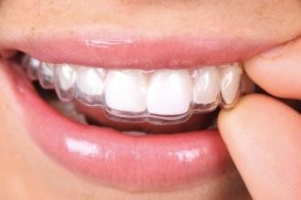 Advantages of Clear Aligners – US Dental