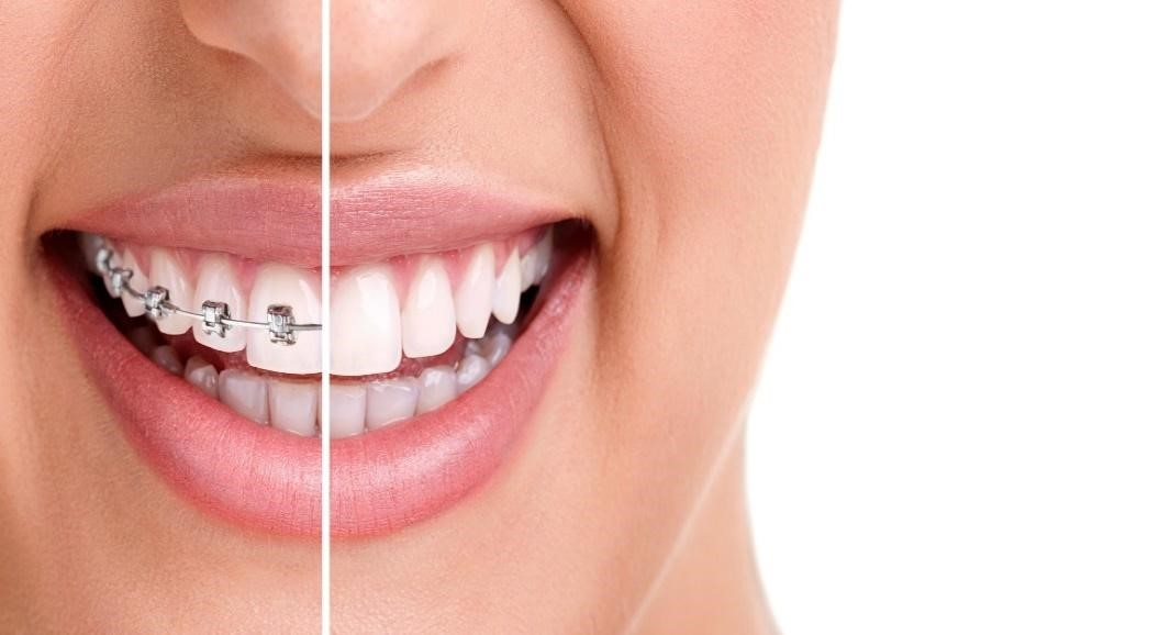 Clear Aligners Treatment in Ahmedabad– US Dental