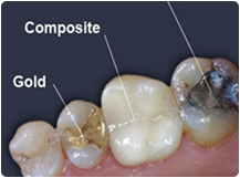 Dental_Cavities
