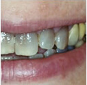 Discoloured or yellow teeth