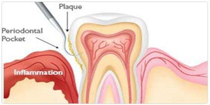 Gum_Periodontal_Infection