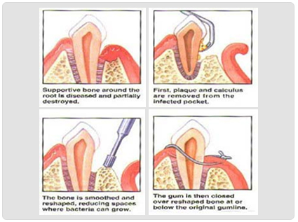 Laser Gum Treatment in Ahmedabad