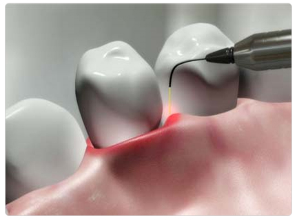 Laser Gum Surgery Ahmedabad
