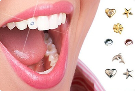 Teeth_Jewelry