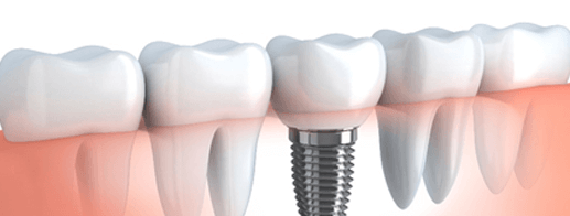 Implant in Ahmedabad